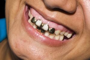 Zahngold kaufen