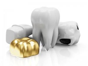 Zahngold einschmelzen